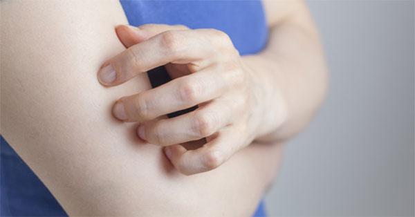 Ótvar tünetei és kezelése - HáziPatika