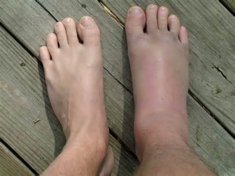 trofikus fekélyek a lábujjak között)