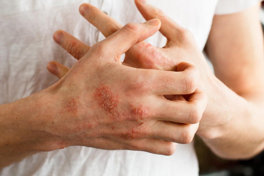 allergiás dermatitis az ujjak között botulinum toxin injekció