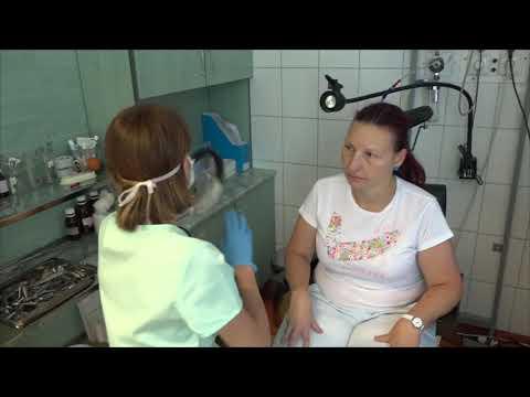 helminták a fej kezelésében kezelés a papillómák eltávolítása után elektrokoagulációval