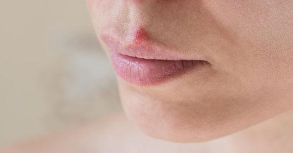 vph a szájban első tünetek