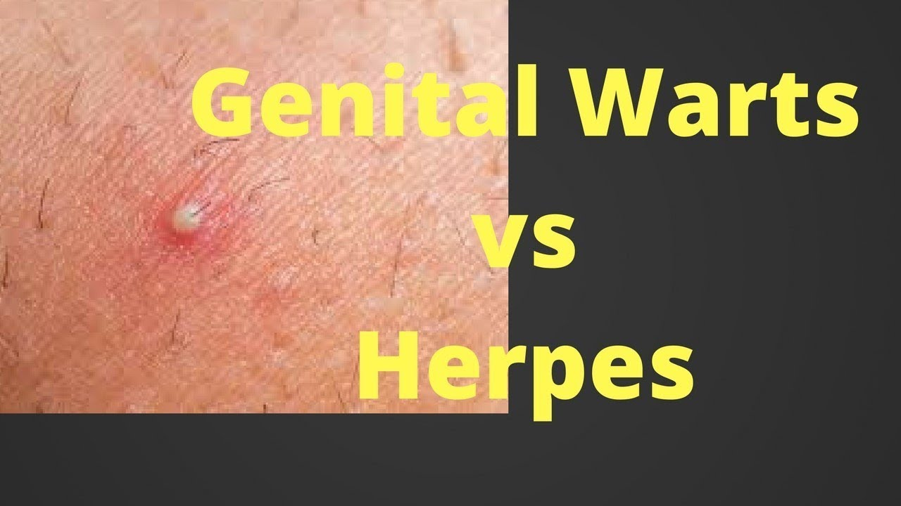 hpv versus herpesz)