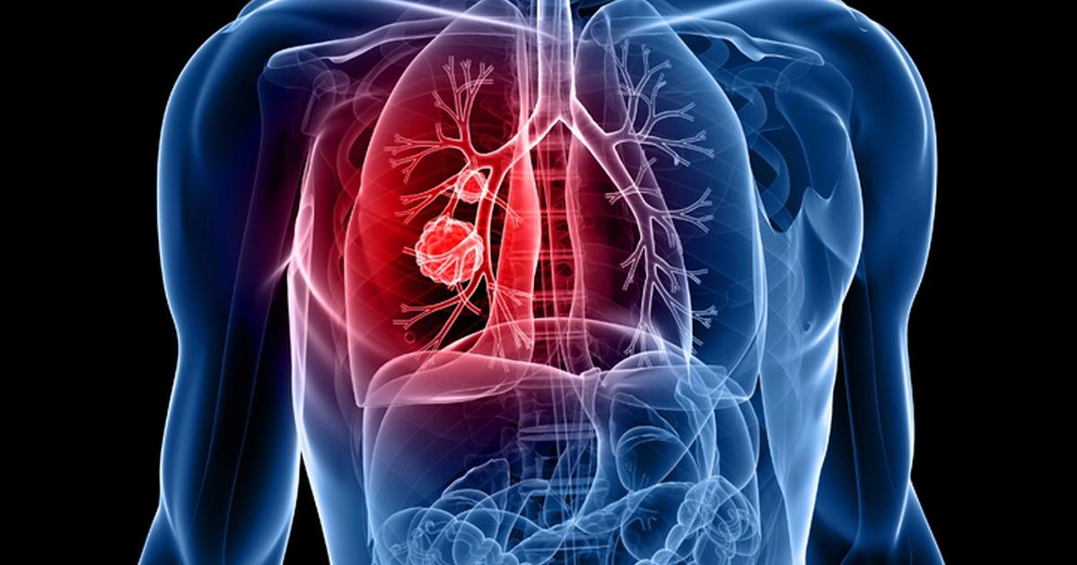 petefészekrák röntgenen