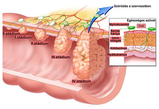 vastagbél rosszindulatú daganata)