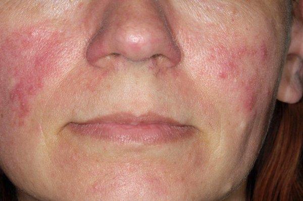 Elcsúfíthatja az arcot a baktérium?