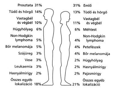 Húgyhólyag daganatok | Hungarian Oncology Network - setalo.hu