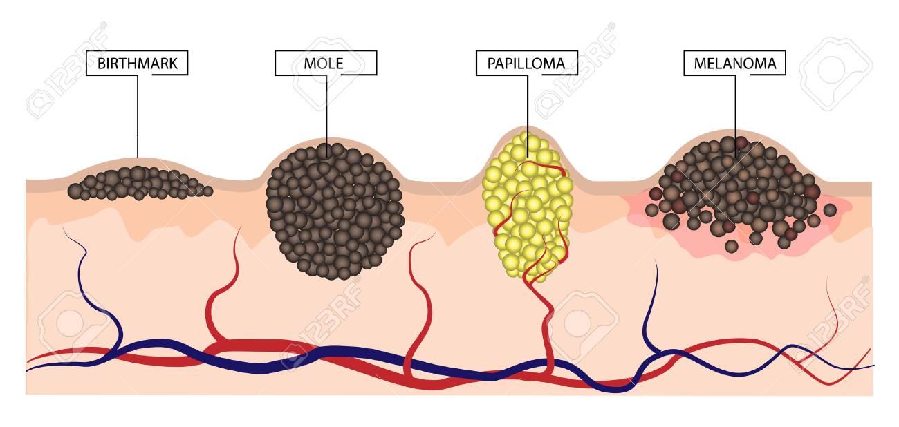 Hpv skin moles, Giardia tratament adulti, Milyen gyógyszereket kell adni a férgek megelőzésére