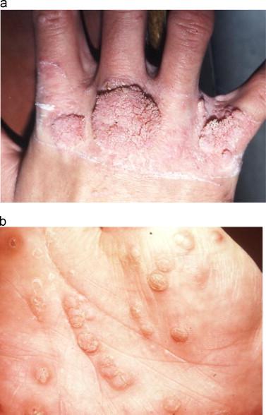 Human Papilloma Vírus – a HPV