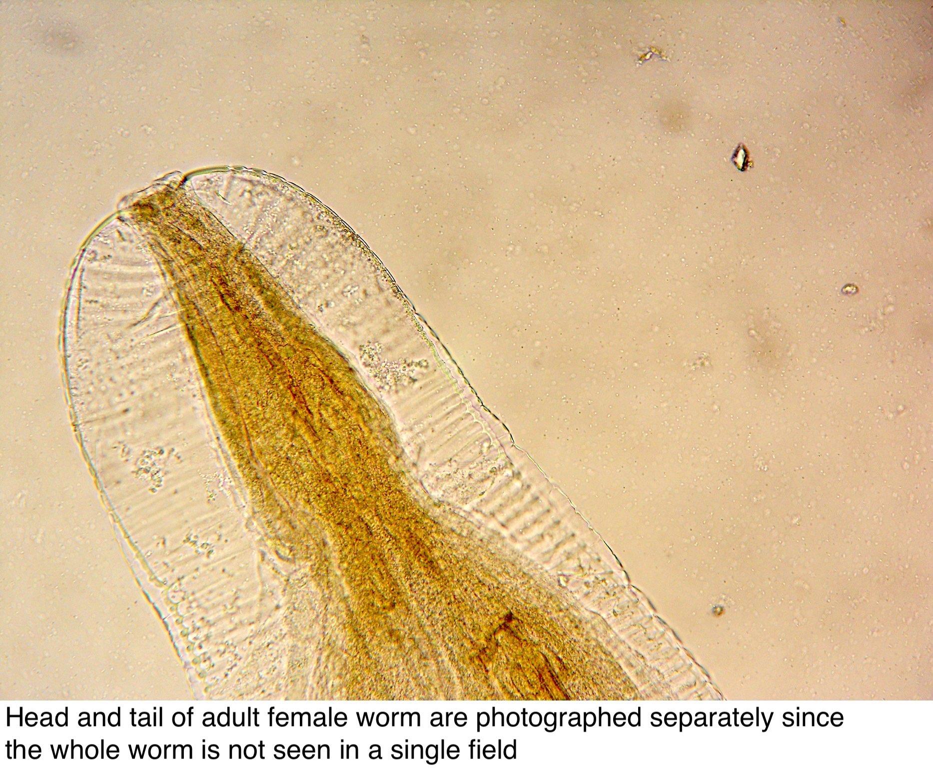 haha enterobius vermicularis leczenie)