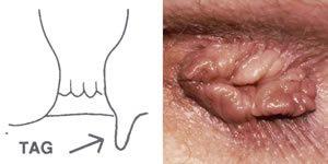 Vírusos szemölcs, condyloma eltávolítása lézerrel