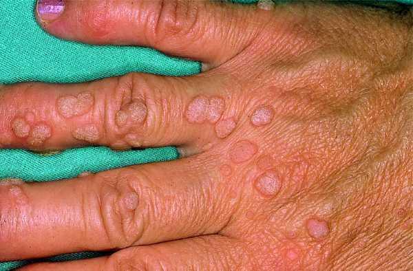 HPV védőoltás - A méhnyakrák megelőzése