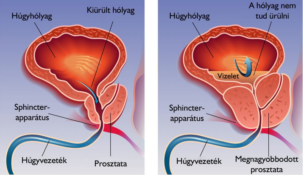 Jóindulatú prosztata megnagyobbodás | Urológiai Klinika