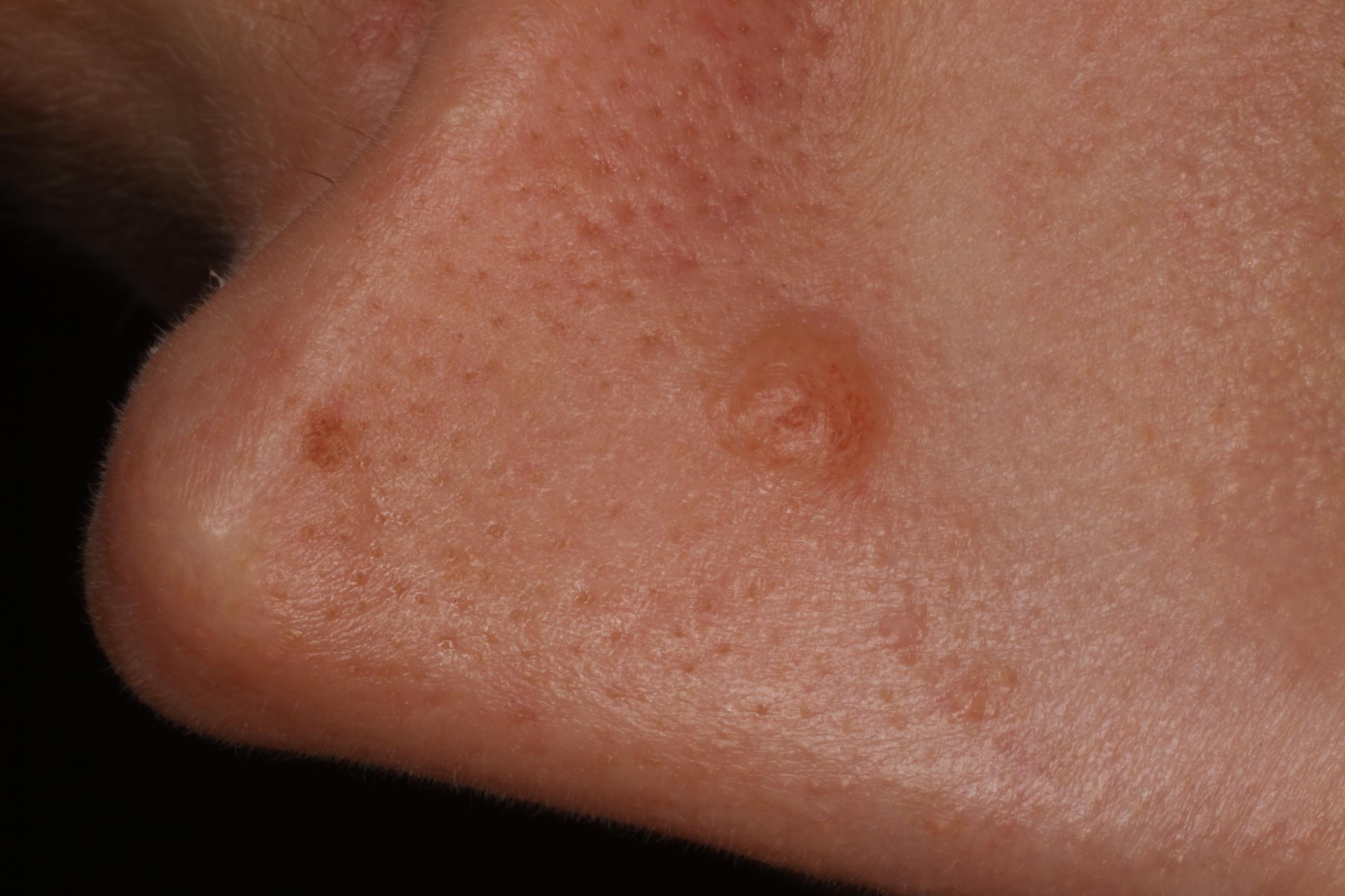 bőrgyógyászat növényi szemölcs)