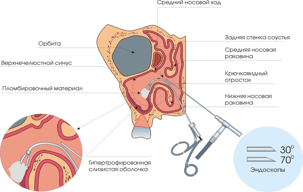 Emberi orrban a növekedések típusai, okai és kezelése - Hörghurut