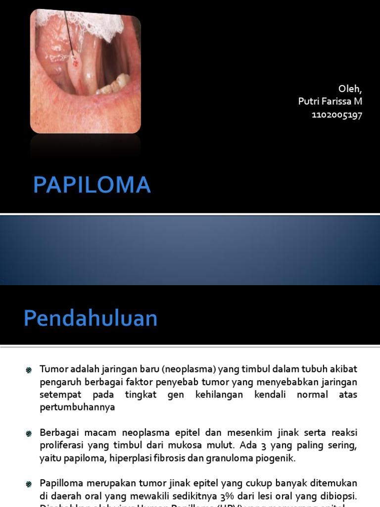 papilloma neoplazma)