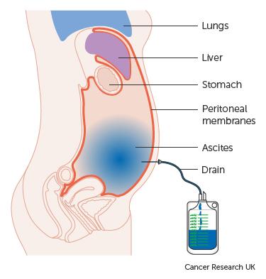 Prosztata adenoma rákos lymphadenectomia