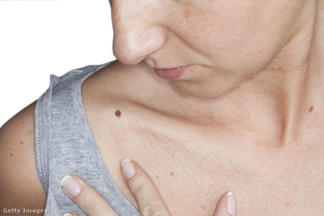 cn enterobiosis férgek kezelése giardiasis esetén