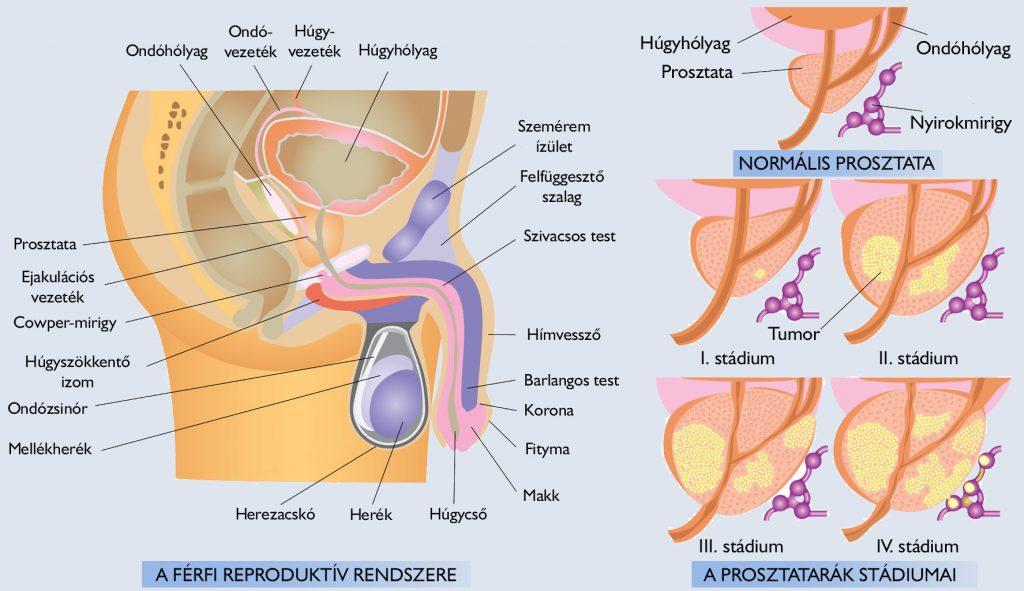 hogyan kell kezelni a szemölcsök véleményét a helminthiasis alkalmazásának kezelésére
