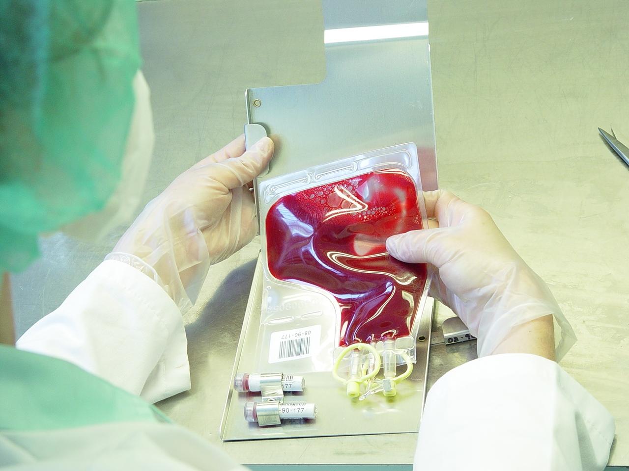 daganatos vérszegénység