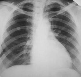 A tüdőrák tünetei - Milyen panaszokra figyeljünk?