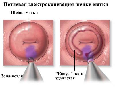 Mit kell tudni a szemölcsökről? - setalo.hu