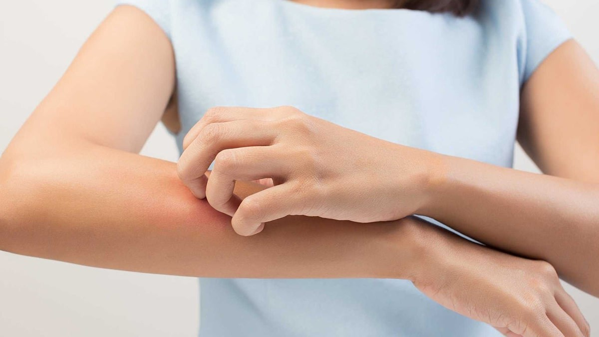 parazita opistohoria kezelés