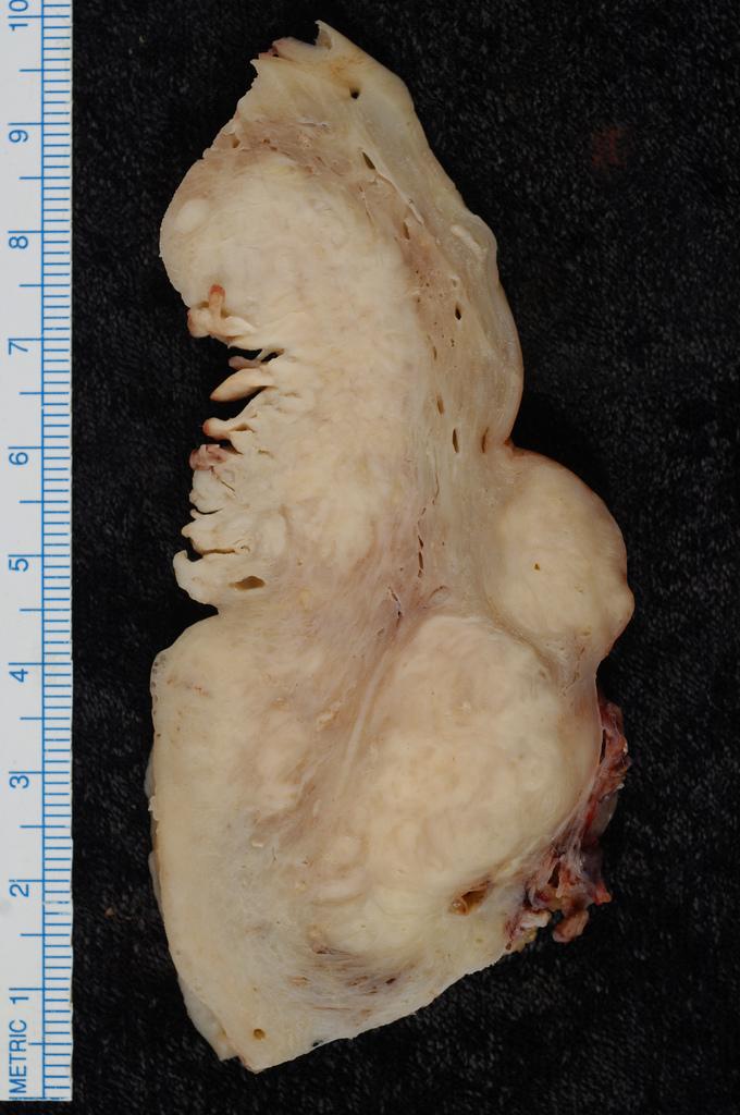 endometrium rákos csípőfájdalom mutasd meg a gyerek férgeit
