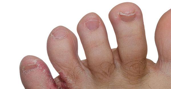 mikózis az ujjak között áttétes rák jelentése