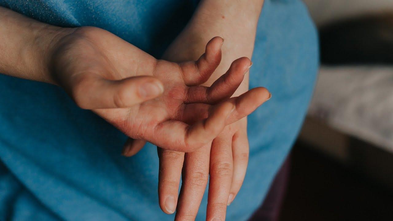 Milyen férgekben szenved az ember rák. Tüdőmétely-fertőzés (paragonimiasis)