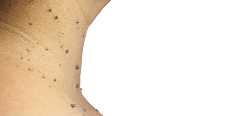 a helminták megelőzése az óvodában olcsó papilloma eltávolítás