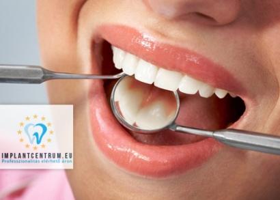 nemazol féreg gyógyszer távolítsa el a szemölcsöket a nyelvről