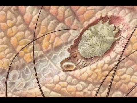 férgek, mint a garnélarák meddig hat a féreggyógyszer