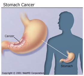 A gyomorrák :: Gyomorrák - InforMed Orvosi és Életmód portál :: gyomorrák