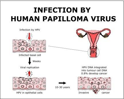 papilloma vírus def