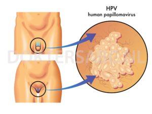 papillomavirus wratten)