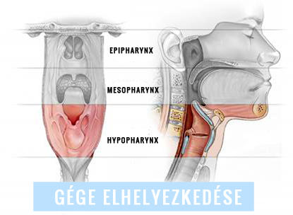 2. stádiumú nyaki rák jóindulatú rákterápia