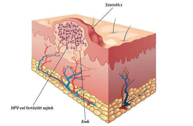 emberi papillomavírus szerkezete