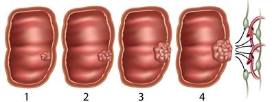 végbélrák daganat mérete