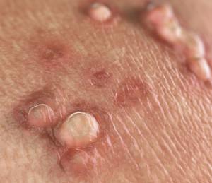 Hpv oltas gardasil - Virus papiloma humano la cura. Video CSID