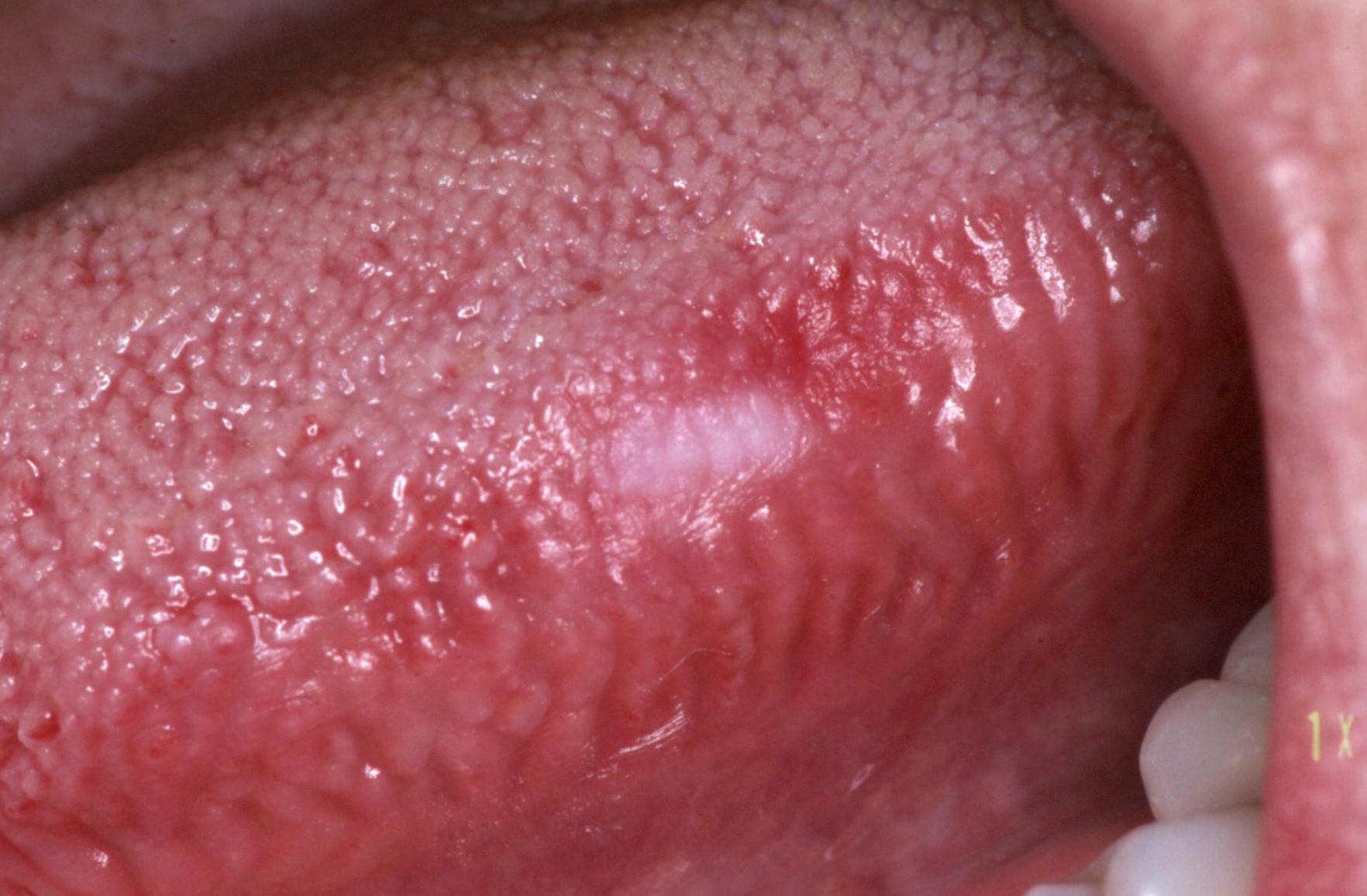 infiltratív gyomorrák emberi papillomavírus fertőzés nyelőcsőrák