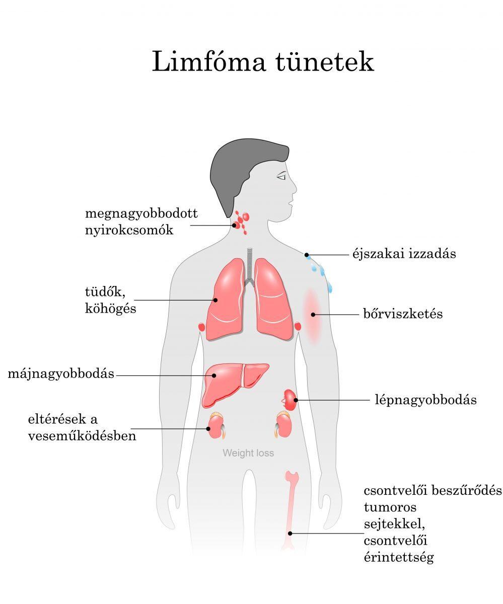 hasi limfóma rák
