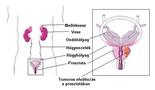 Kamaszkori prosztatagyulladás