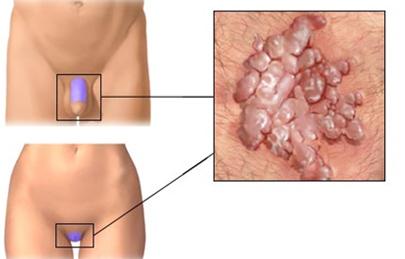 kezelés a genitális szemölcsök eltávolítása után)