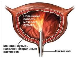 fascioliasis fertőzés módszere gleason prosztatarák
