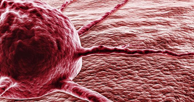 áttétes rák jelentése