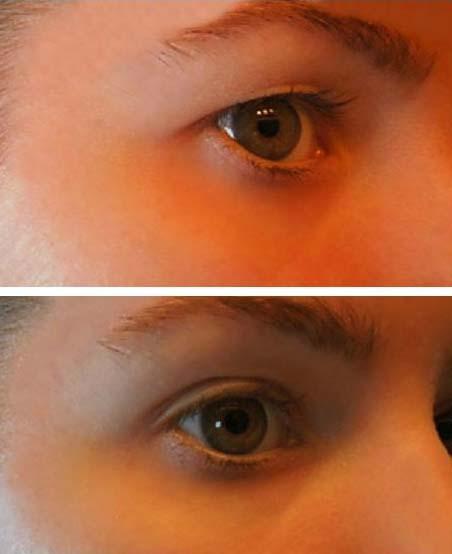 Papillómák kezelése a szemek közelében   PapiSTOP