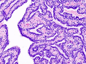 intraductalis papilloma hisztopathology)