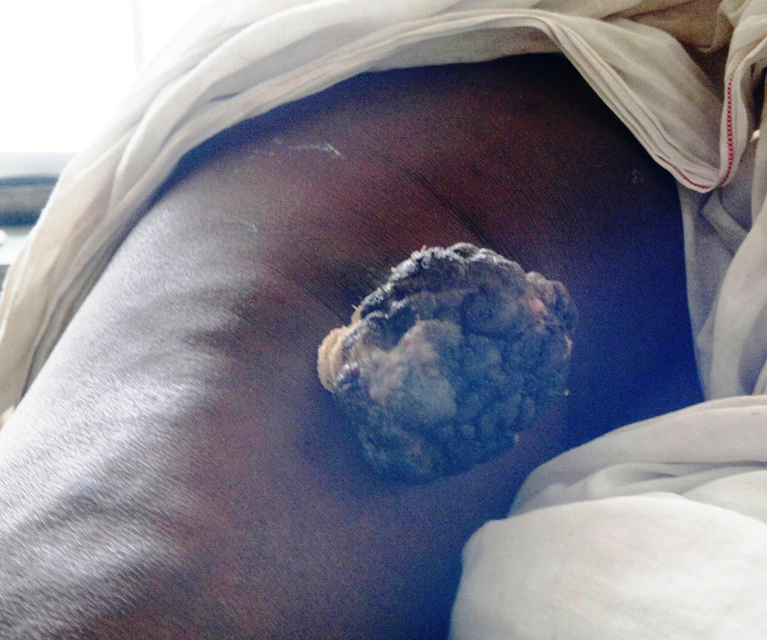 a hüvelyi nyálkahártya condyloma az urothelialis papilloma a hólyag