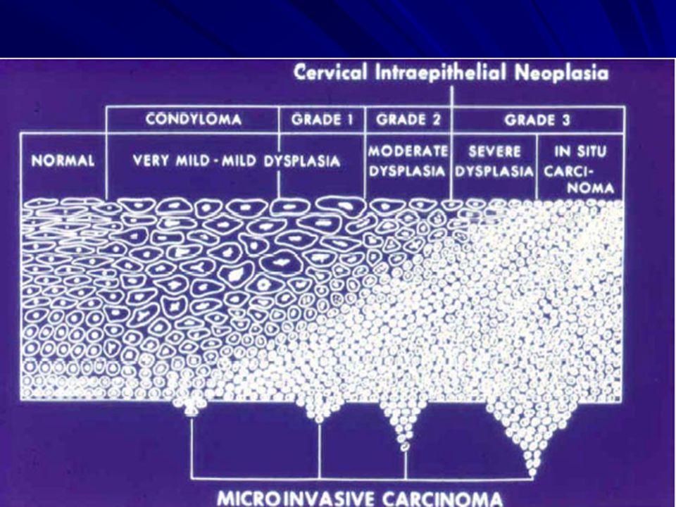 a condyloma értéke a flagelláris paraziták kezelése