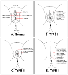 a genitális szemölcsök rádiófrekvenciás koagulációja tabletták széles spektrumú bélparaziták ellen
